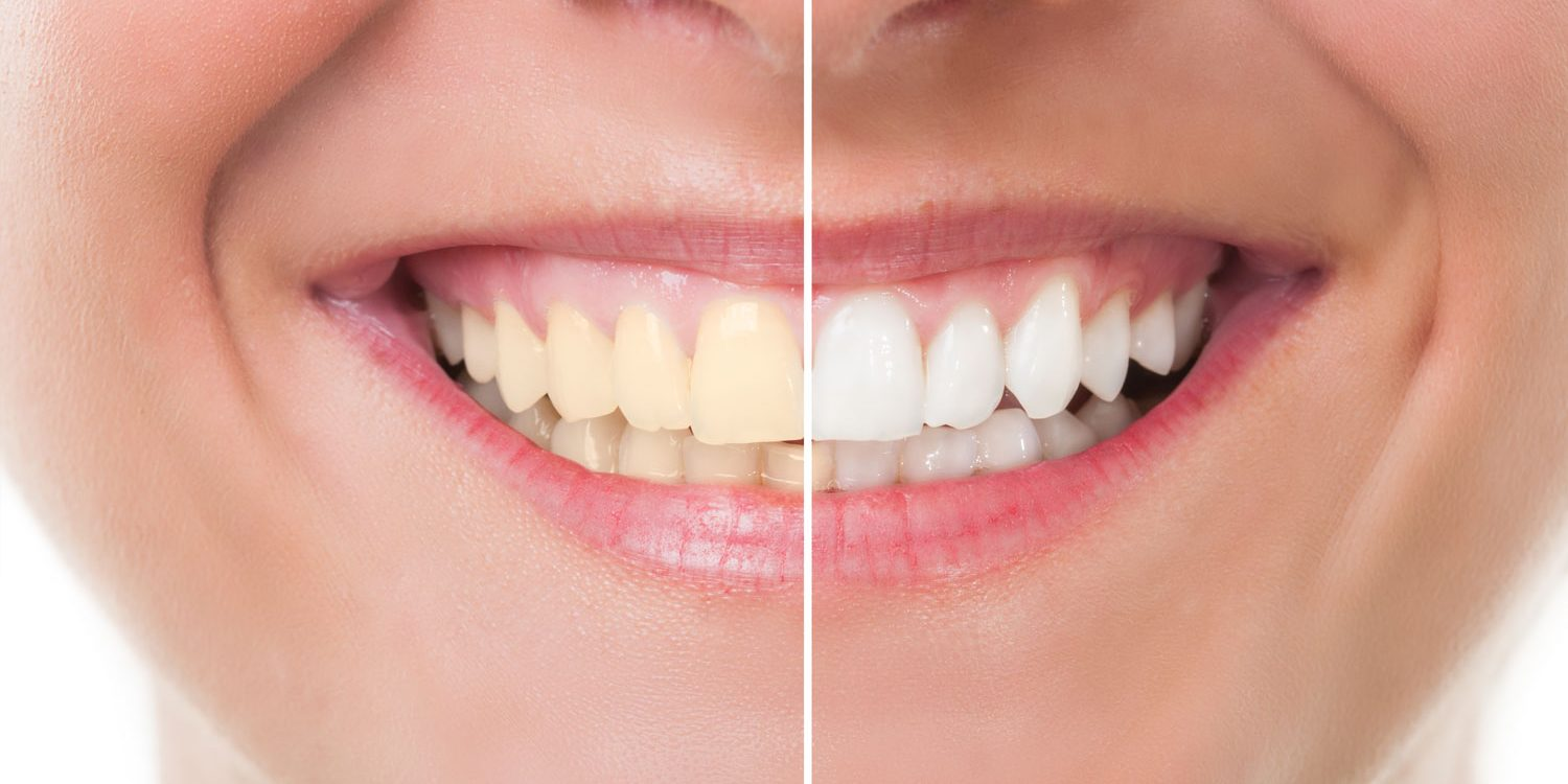 Is Teeth Whitening Safe? - 360 Dental Care